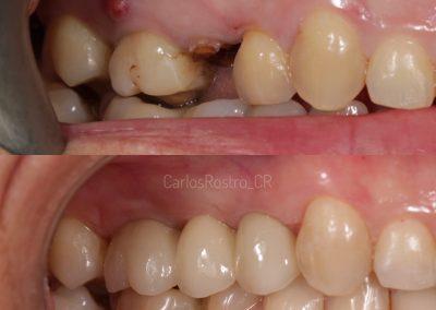 Rehabilitación con implantes
